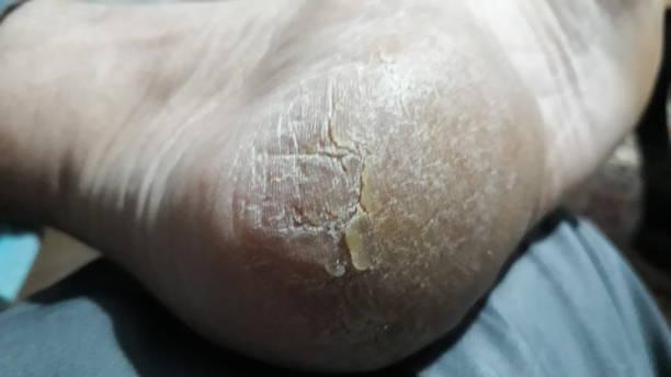 cracked sole of foot - callo foto e immagini stock