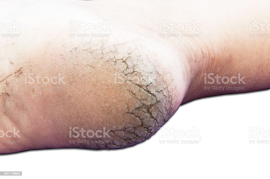 Cracks on Heels stock photo