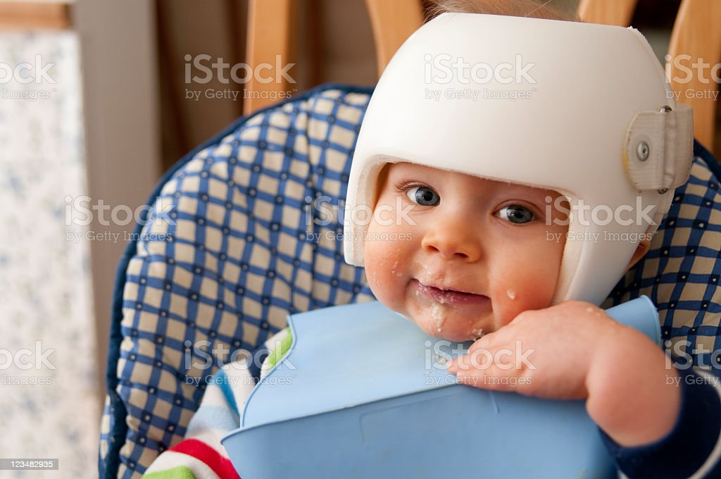 Cranial Remolding helmet worn for the treatment of plagiocephaly stock photo