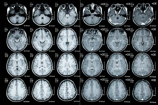 Normal Cat Scan image of a child cranium
