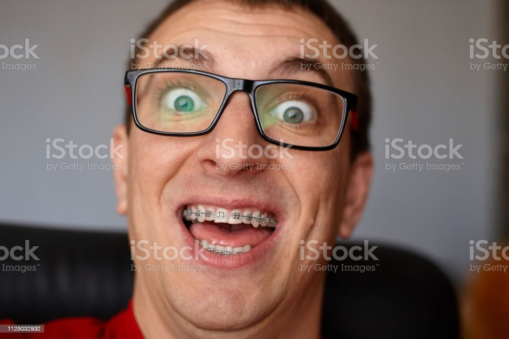 Crazy face of guy with braces on his teeth with smile and glasses....