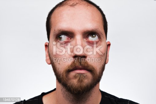 Dating a cross eyed man