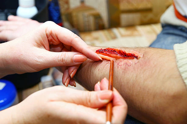 Creation of an artificial wound stock photo