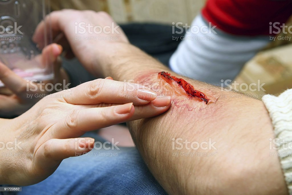 Creation of an artificial wound royalty-free stock photo