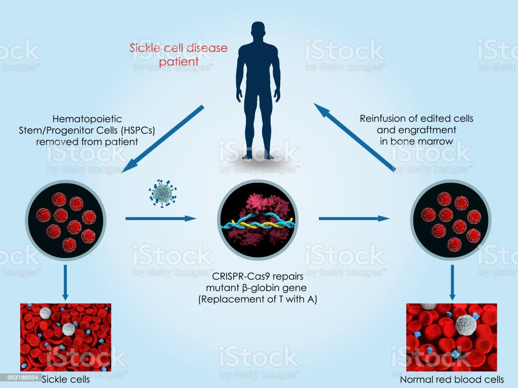 CRISPR-Cas9 to treat sickle cell disease stock photo
