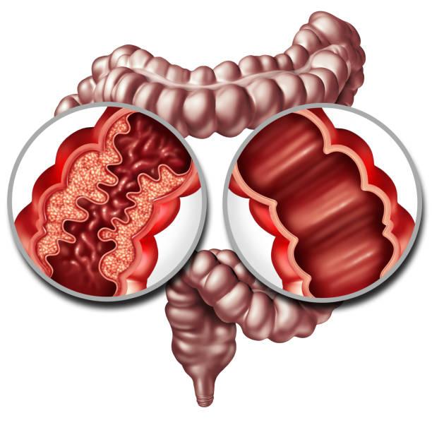 Crohn Disease And Healthy Intestine stock photo