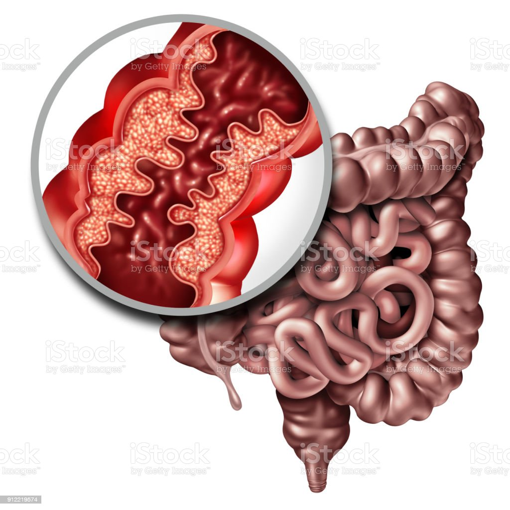 Crohn's Disease stock photo