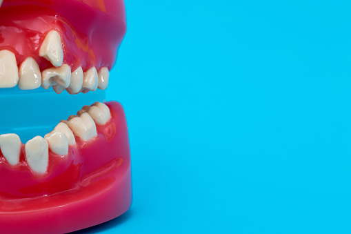 Crooked teeth model on blue background.