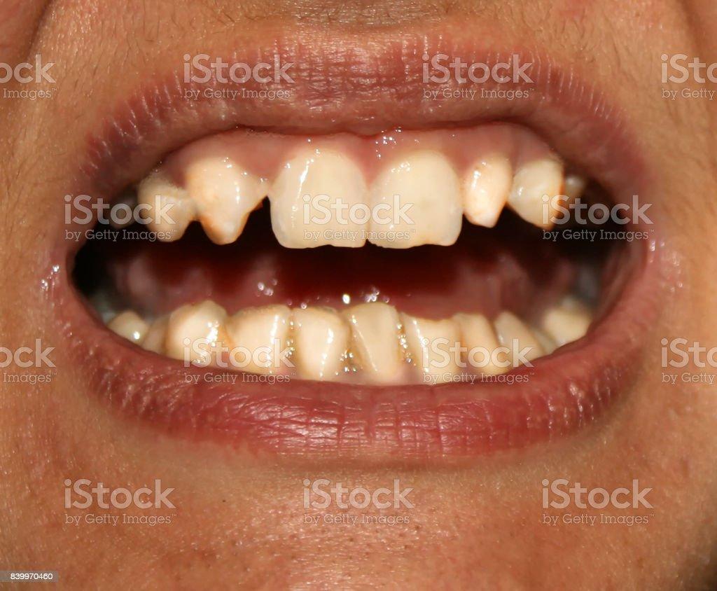Dientes Chuecos Ortodoncia Subdesarrollo Y Defectos De Los Dientes