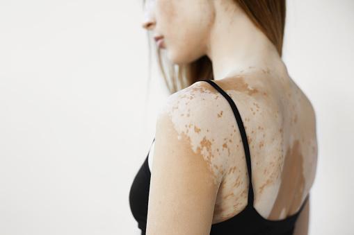 Vitiligo-in-de-huid