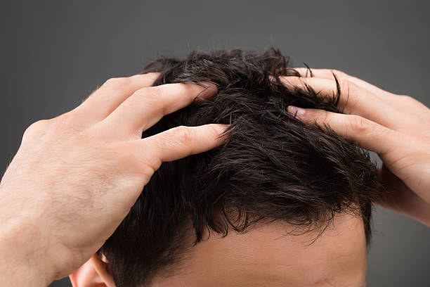 Cropped Image Of Man Suffering From Dandruff Cropped image of man suffering from dandruff against gray background dandruff stock pictures, royalty-free photos & images