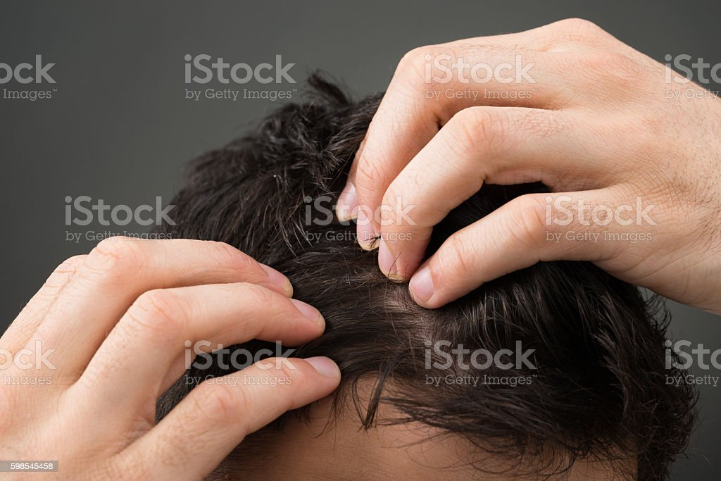 Cropped Image Of Man Suffering From Hair Loss stock photo