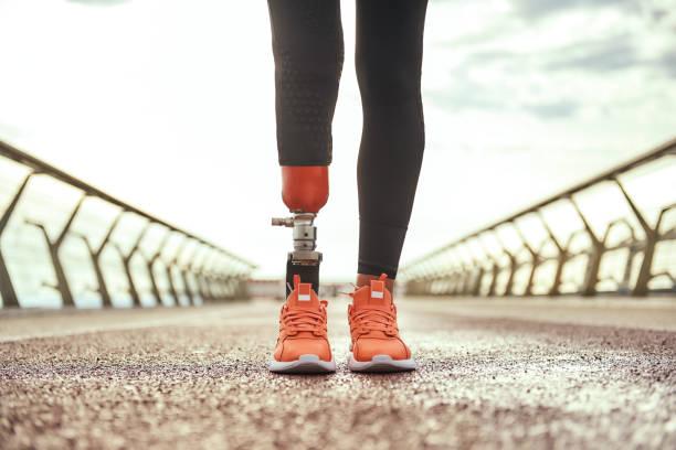 beskuren bild av handikappade kvinna med protetiska ben i sportkläder stående på bryggan - protesutrustning bildbanksfoton och bilder