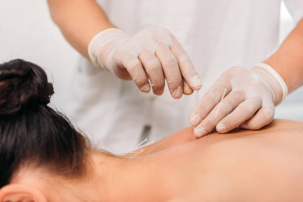 cropped shot of cosmetologist putting needles on womans back during acupuncture therapy in spa salon stock photo