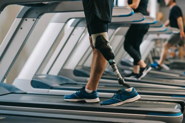 beskuren bild av mannen med konstgjord ben gå på löpband på gym med andra människor - protesutrustning bildbanksfoton och bilder