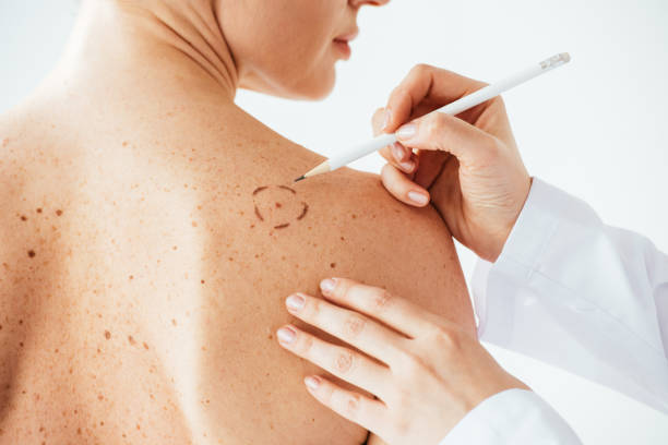 cropped view of dermatologist applying marks on skin of naked woman with melanoma isolated on white stock photo