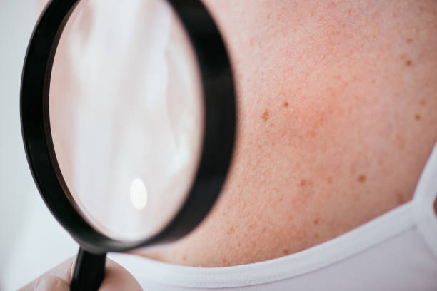 cropped view of dermatologist holding magnifying glass near patient with melanoma - dermatologist stock pictures, royalty-free photos & images