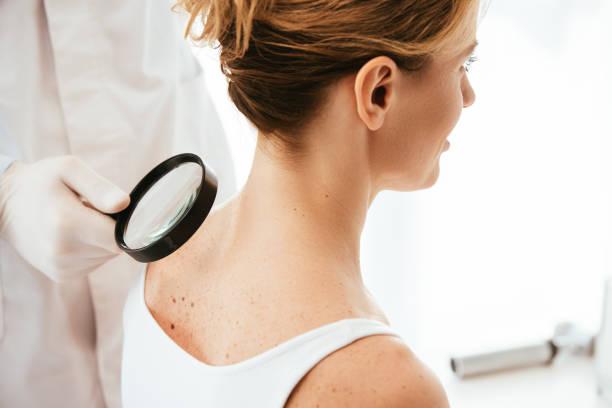 schnittschnitt ansicht des dermatologen hält lupe bei der untersuchung von frau mit melanom - leberfleck hautmerkmal stock-fotos und bilder