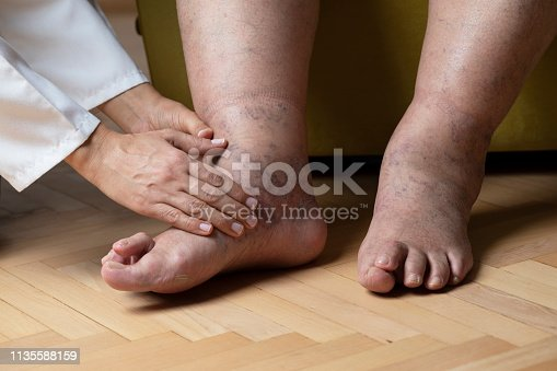 "Doctor is examining patients ""Cross Over Toe"" (Hammertoe) at home."
