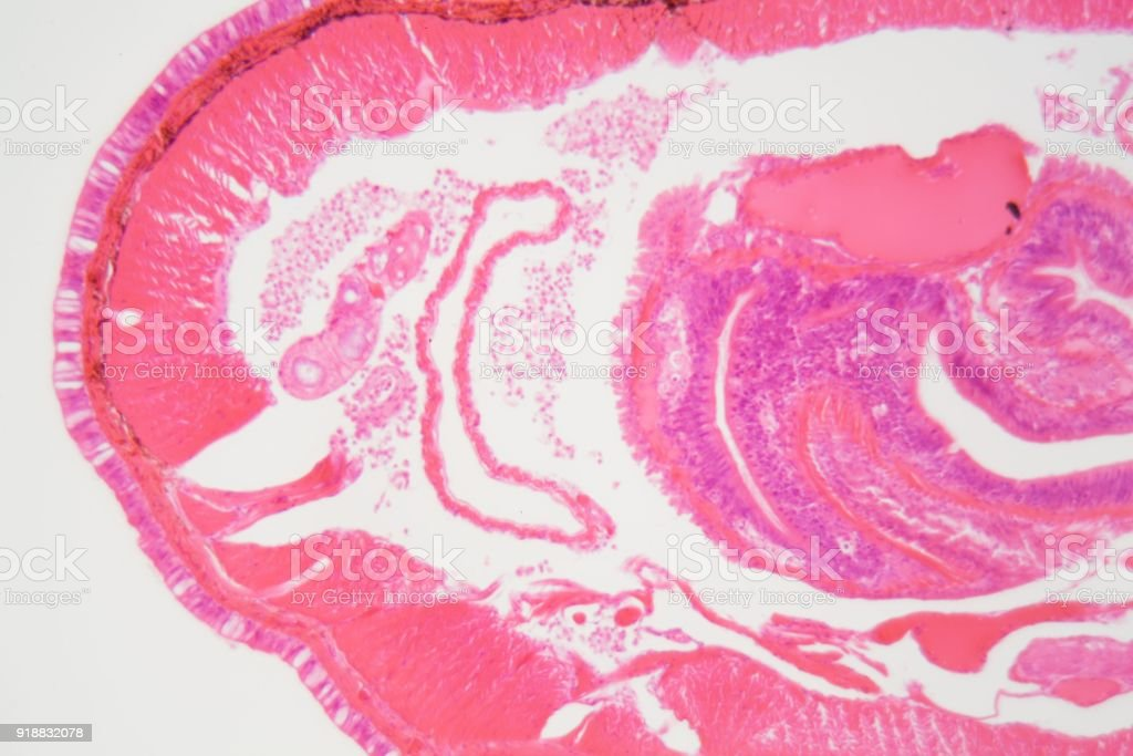 Cross Section Of An Earthworm Stock Photo & More Pictures of Anatomy ...