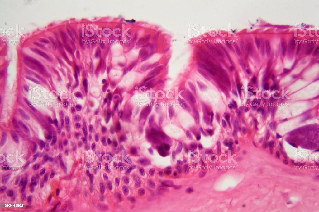 Querschnitt durch die hypophyse in der mikroskopie stock