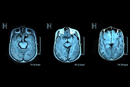 Digital generated image of human brain.
