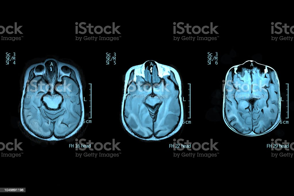 Cross section of human brain stock photo