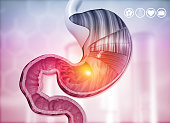 istock Cross section of human stomach diagram 1200889882