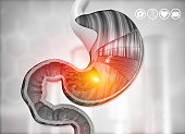 istock Cross section of human stomach diagram 1200890193