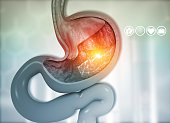 istock Cross section of human stomach diagram 1201820571