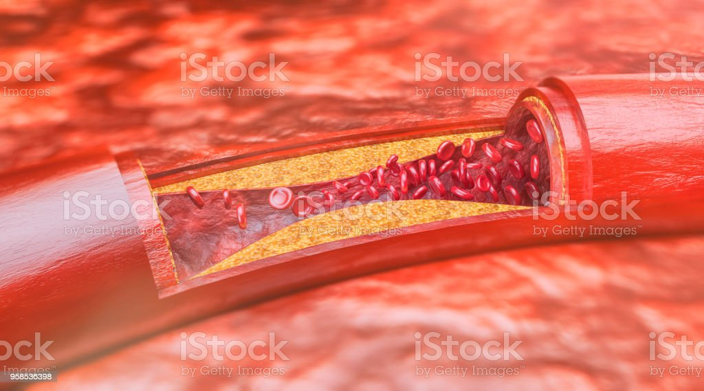 Cross section through an artery with occlusive disease stock photo