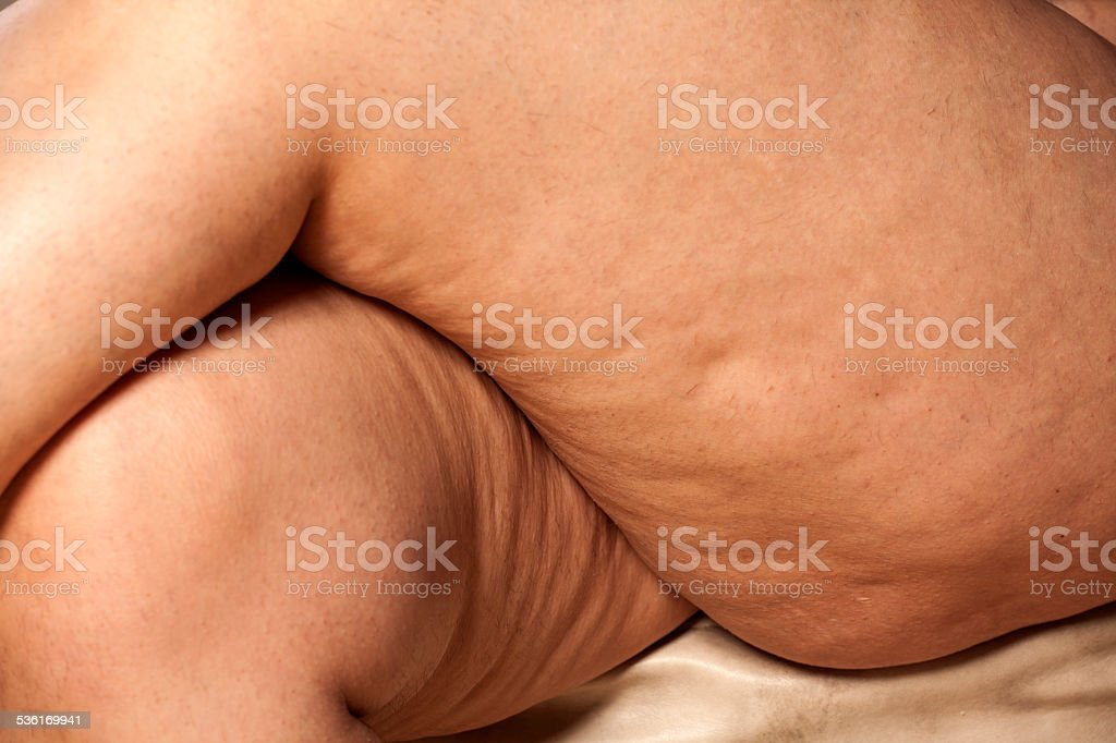 Crossed thick female legs with cellulite and stretch marks stock photo