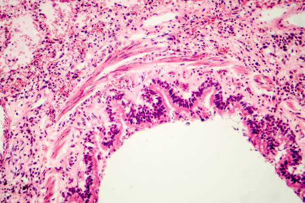 Cross-section of human lung tissue showing bronchiole and alveoli Cross-section of human lung tissue showing fragment of bronchiole, histology, micrograph, photo under microscope light micrograph stock pictures, royalty-free photos & images