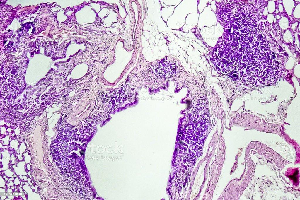 Secção transversal do tecido pulmonar normal de rato, zoom de 100 x - foto de acervo