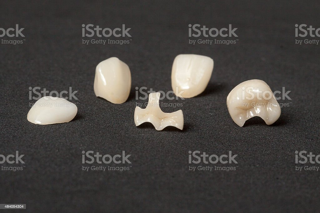 Crowns, inlays and veneers of leucite ceramics stock photo