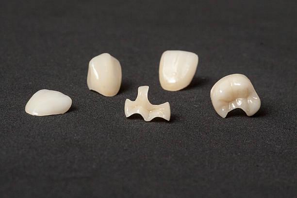 kronen einlagen und veneers von leucite keramik - inlay zahn stock-fotos und bilder