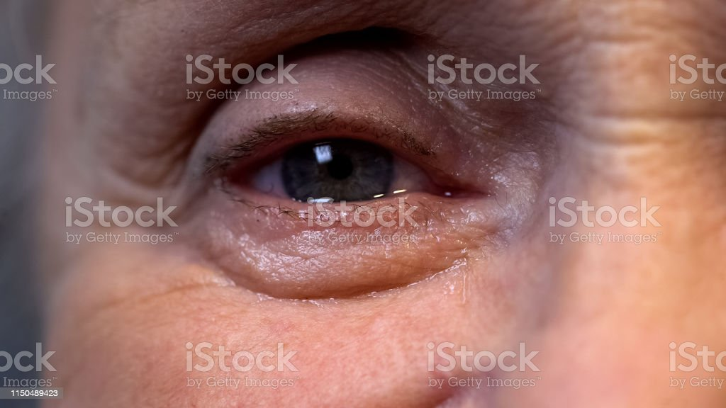 Crying eye of senior wrinkled pensioner, old age depression,...
