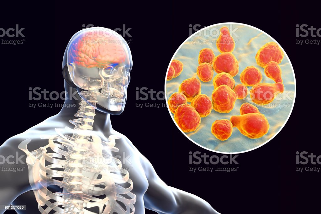 Cryptococcal meningitis, medical concept stock photo