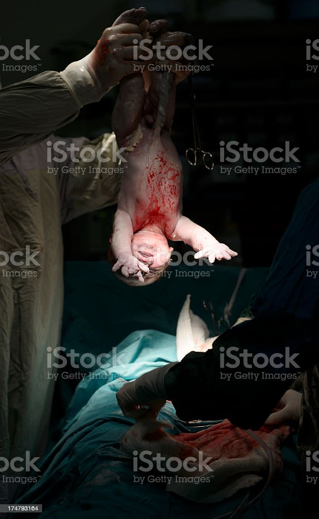 C-Section royalty-free stock photo