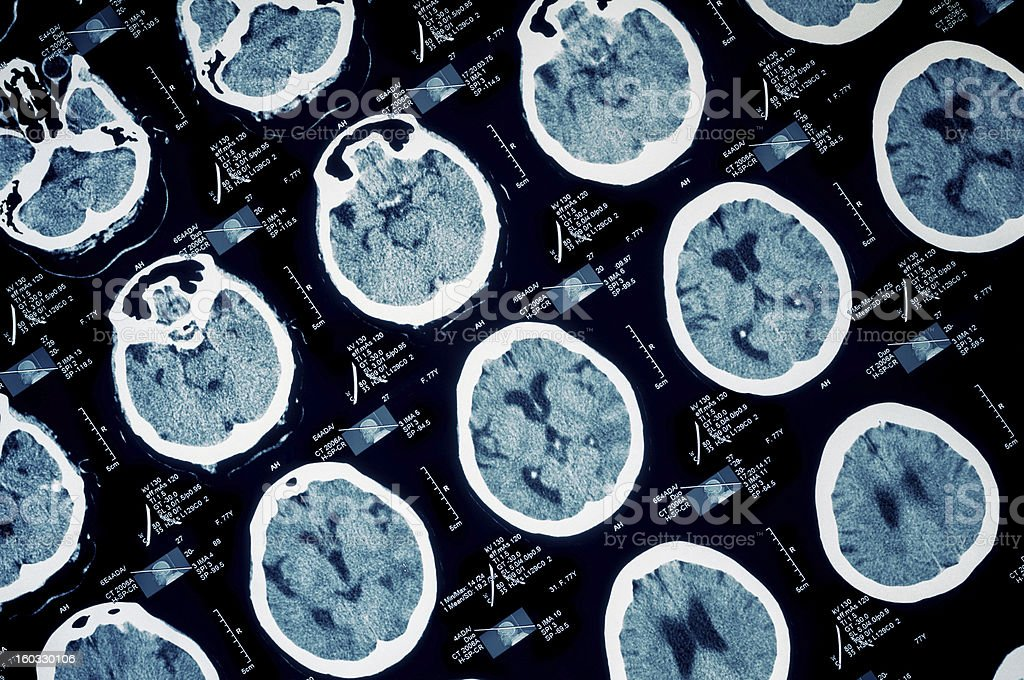 Ct scan of human scull stock photo