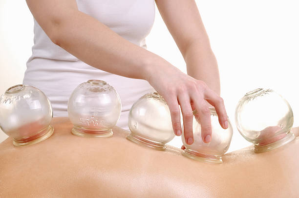 cupping massage - cupping therapy stock photos and pictures