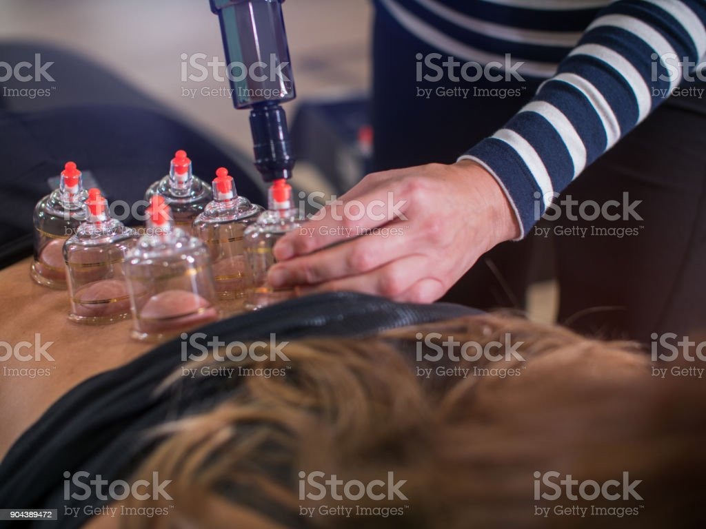 Cupping procedure stock photo