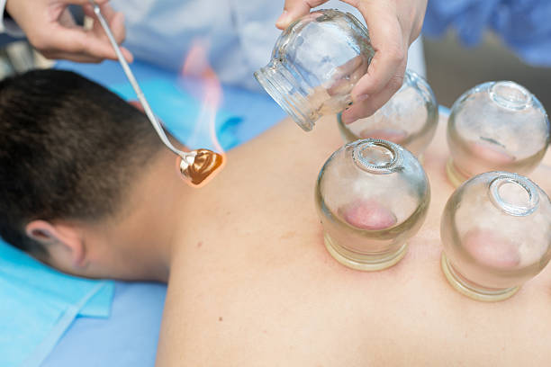 cupping therapy in traditional chinese medicine - cupping therapy stock photos and pictures