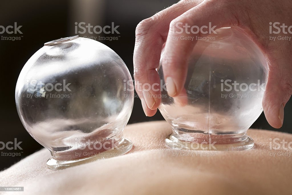 Cupping therapy stock photo