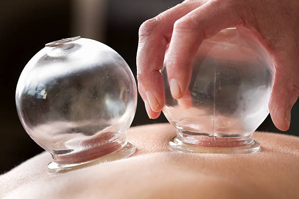 cupping therapy - cupping therapy stock photos and pictures
