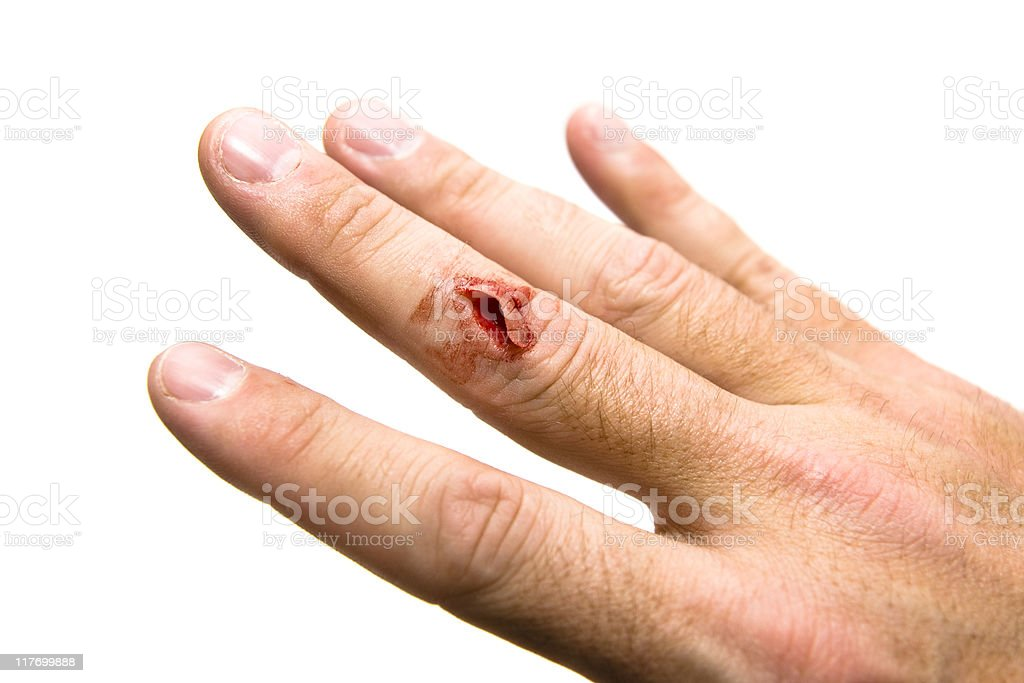 Cut Finger stock photo
