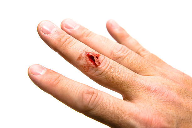 cut finger - knuckle stock photos and pictures