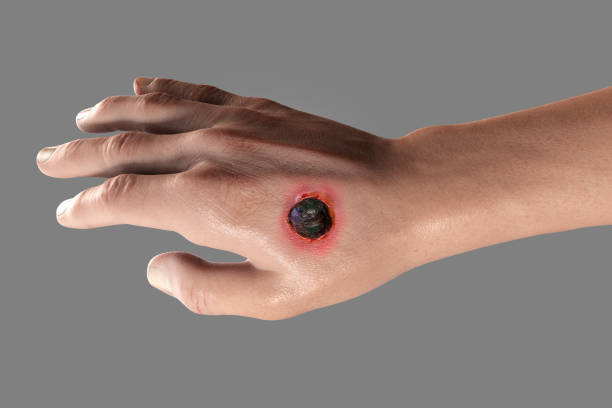 Cutaneous anthrax, the most common form of anthrax stock photo