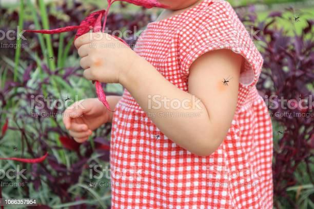 Cute asian baby girl has skin rash and allergy from mosquito bite and picture id1066357954?b=1&k=6&m=1066357954&s=612x612&h=txxnxdxa89gw9bq4aawiau6vi9xvygqxzaf8msjgvek=