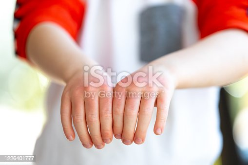 A little redhead boy is showing the sunburn he has on his hands. His hands are very red and dry.